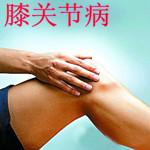 膝关节病治疗