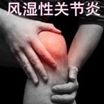 风湿性关节炎治疗
