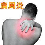 肩周炎治疗